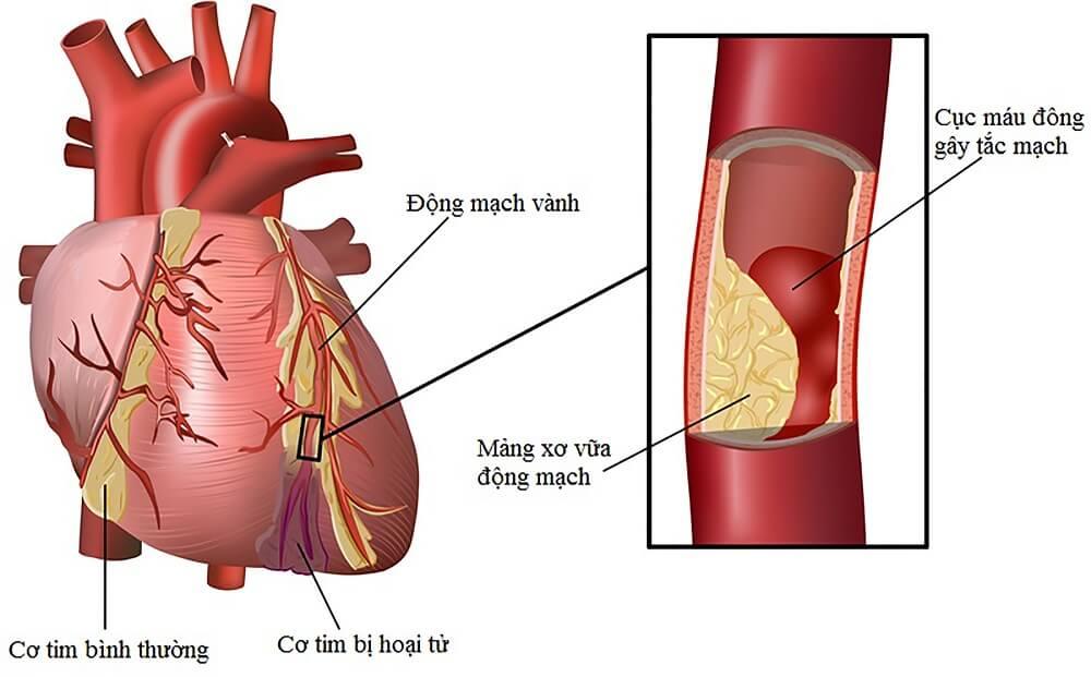 Triệu chứng bệnh tiểu đường 4