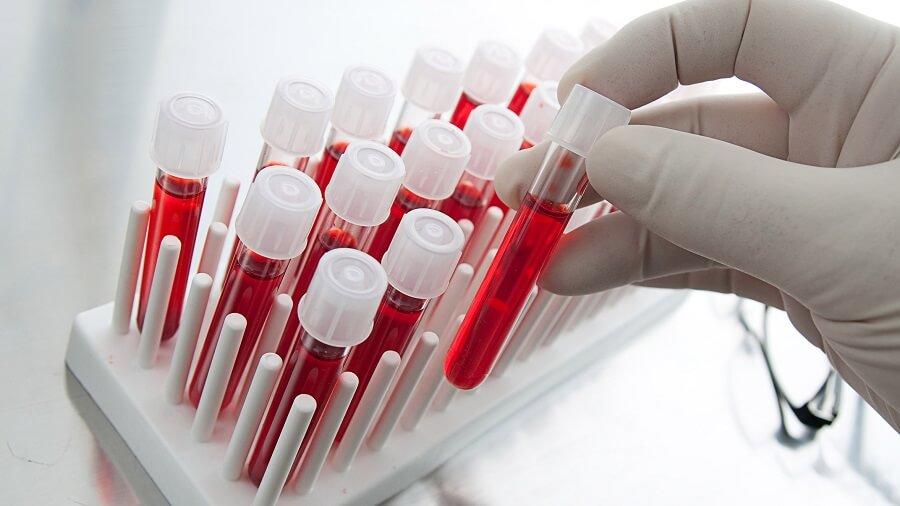 xét nghiệm đái tháo đường ở phụ nữ mang thai 4