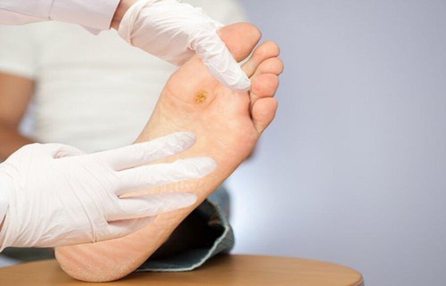 Bệnh nhân tiểu đường cắt bỏ ngón chân 6