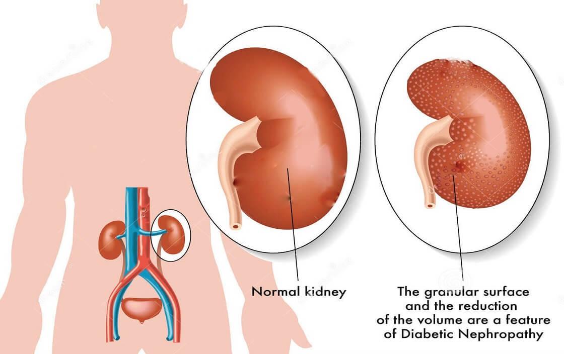 Bệnh thận do tiểu đường 1