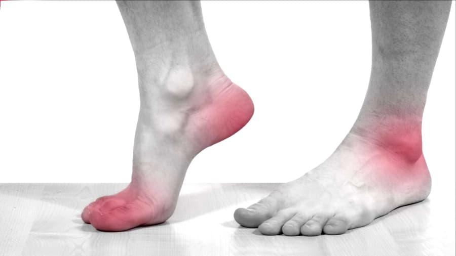 Biến chứng tiểu đường ở chân - Bệnh thần kinh tiểu đường