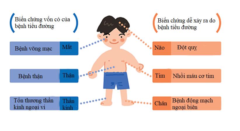 Hiểu đúng về tiểu đường ở trẻ em 2
