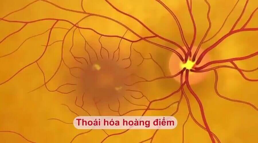 Mất thị giác, bệnh võng mạc do tiểu đường 6