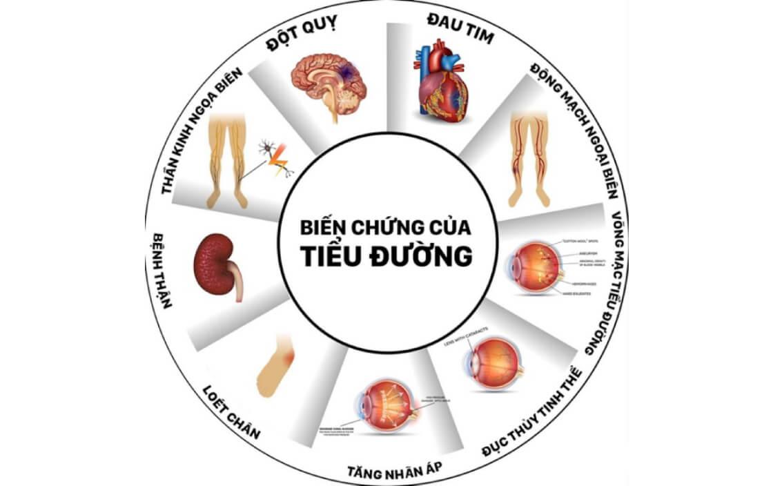 Thời gian biến chứng của bệnh tiểu đường 3