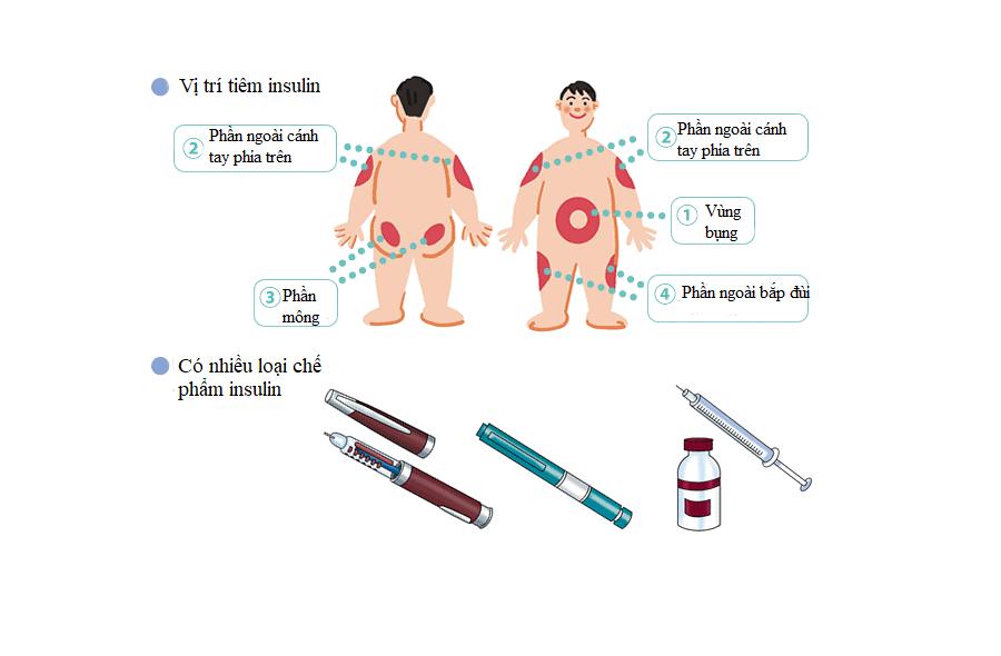 Tìm hiểu về insulin 4