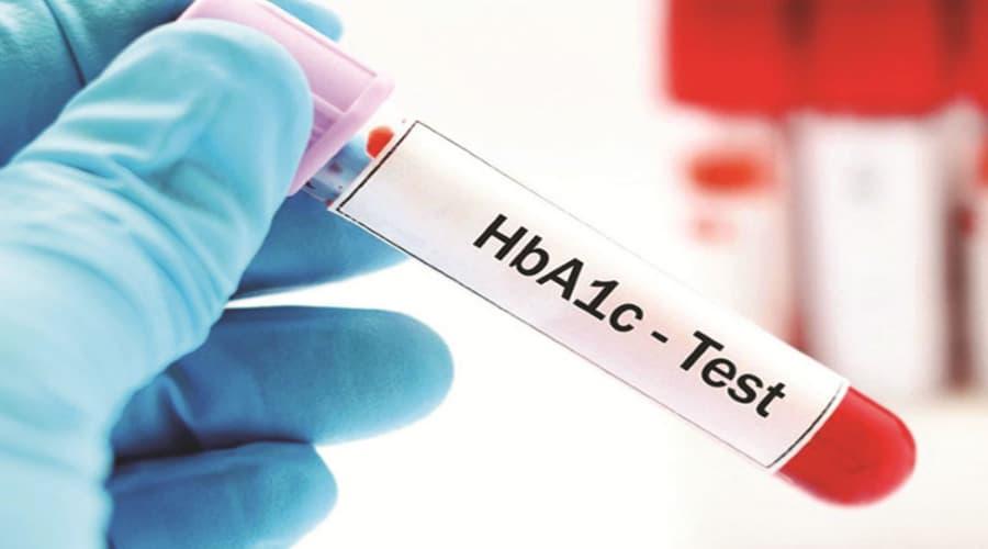 Tìm hiểu về lượng đường trong máu, lượng đường trong nước tiểu, HbA1c 3