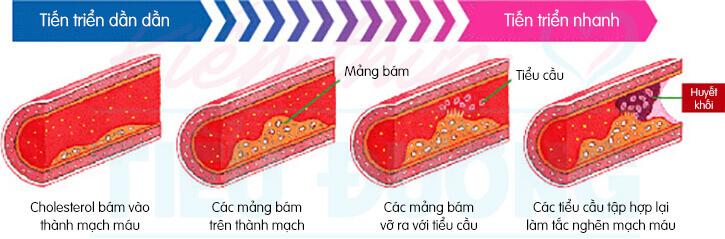 Bệnh tiểu đường và nhồi máu não, nhồi máu cơ tim 4