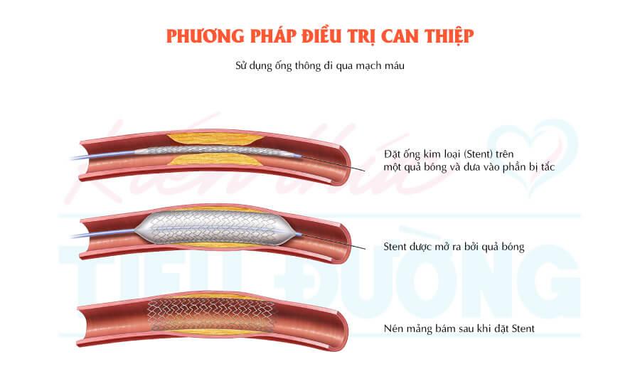Tổn thương bàn chân tiểu đường. Phát hiện và điều trị sớm có thể ngăn ngừa cắt chân 3