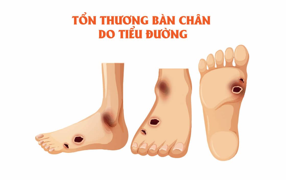 Tổn thương bàn chân tiểu đường. Phát hiện và điều trị sớm có thể ngăn ngừa cắt chân