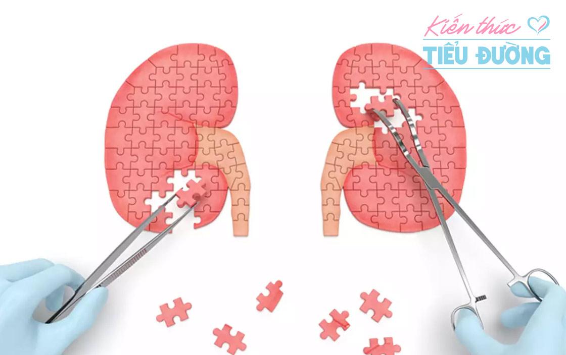 Bệnh tiểu đường và tăng huyết áp có ảnh hưởng lớn đến sự khởi phát của bệnh thận mãn tính