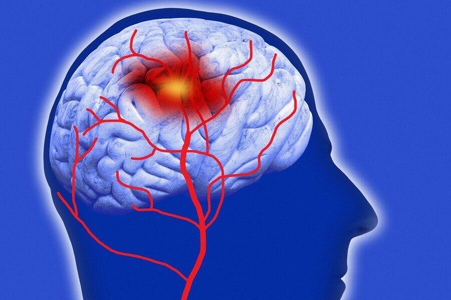 Mối quan hệ giữa hội chứng suy giảm trí nhớ và bệnh tiểu đường 3