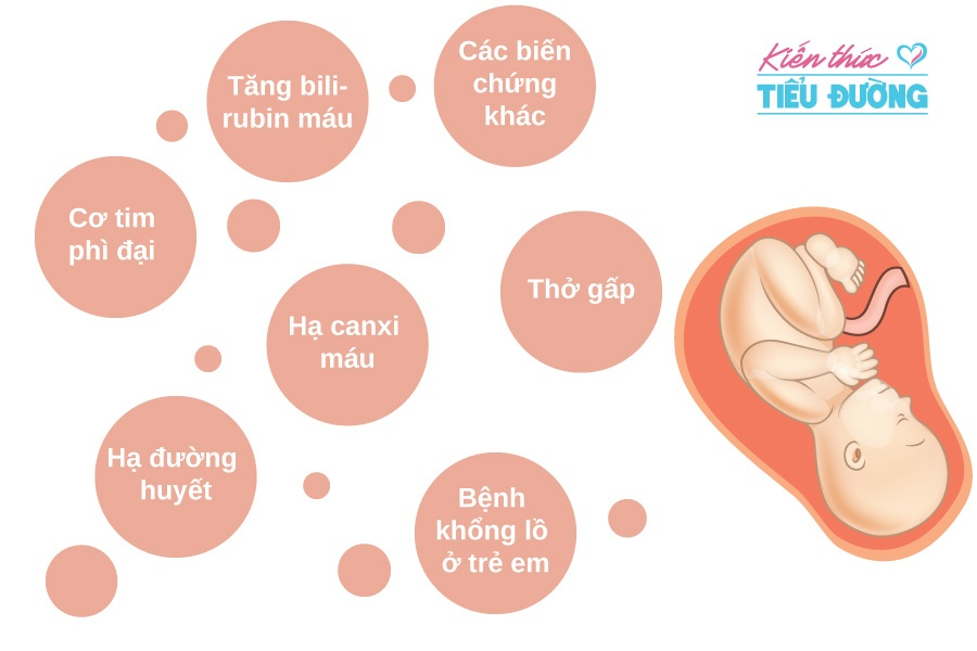 Biến chứng trẻ sơ sinh dễ xảy ra khi người mẹ bị bệnh tiểu đường trước khi mang thai và bệnh tiểu đường thai kỳ là gì? 2