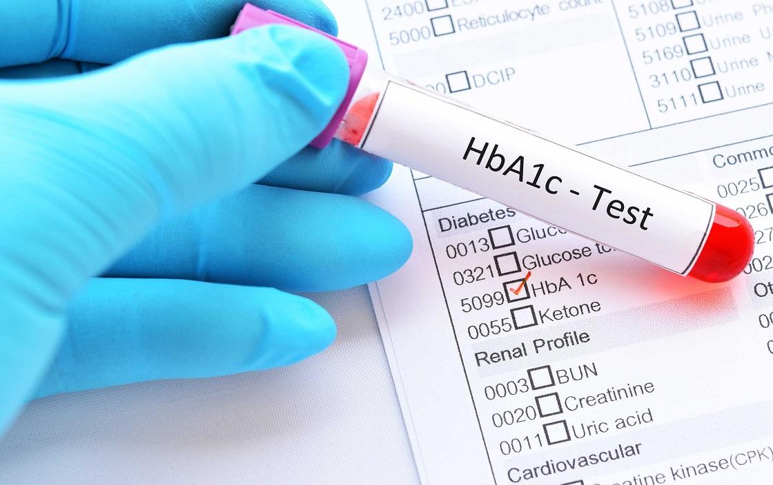 Chỉ số kiểm soát đường huyết cần duy trì đề phòng ngừa biến chứng tiểu đường là bao nhiêu? 0